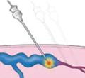 endovenouslaser