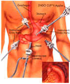 refluxgastritis